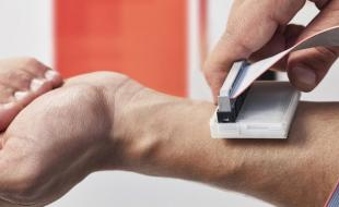 Le sKan, un appareil de détection du cancer de la peau. (Photo offerte gracieusement par le James Dyson Award.)